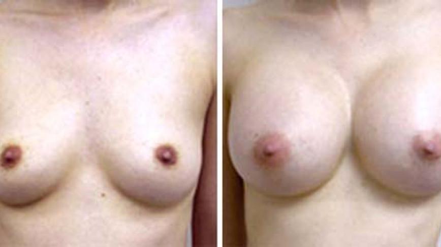 Visual of Fake for Real: Natural Breasts?