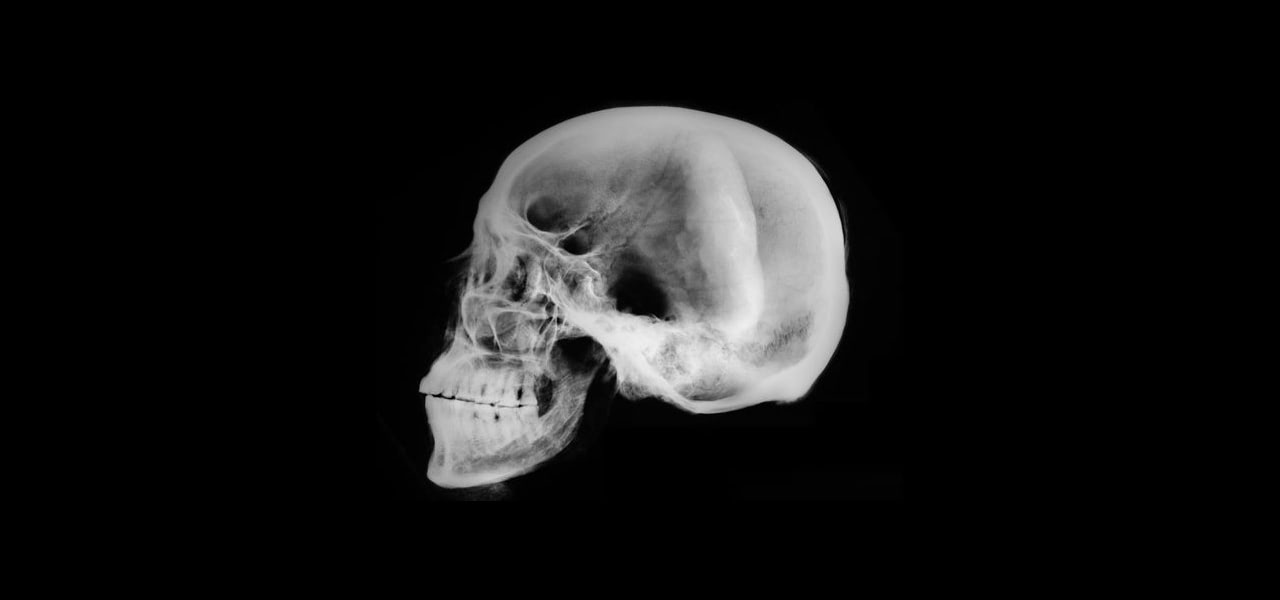 Visual of Did Forks Really Give Modern Humans an Overbite?