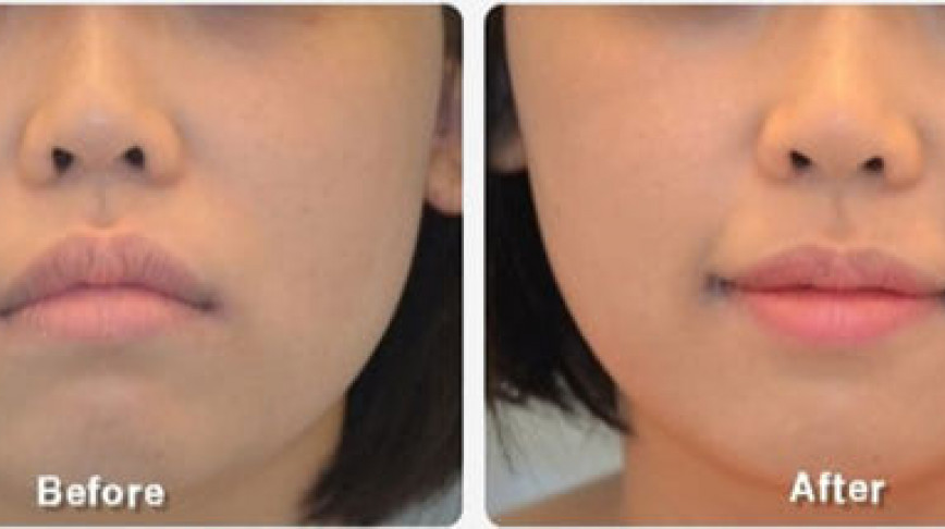 Visual of Feeling Sad? Ladies in Korea Go Under the Knife for a Perma-Smile