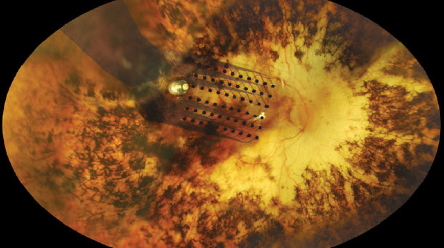 Visual of Bionic Eye: Limited Vision to the Blind