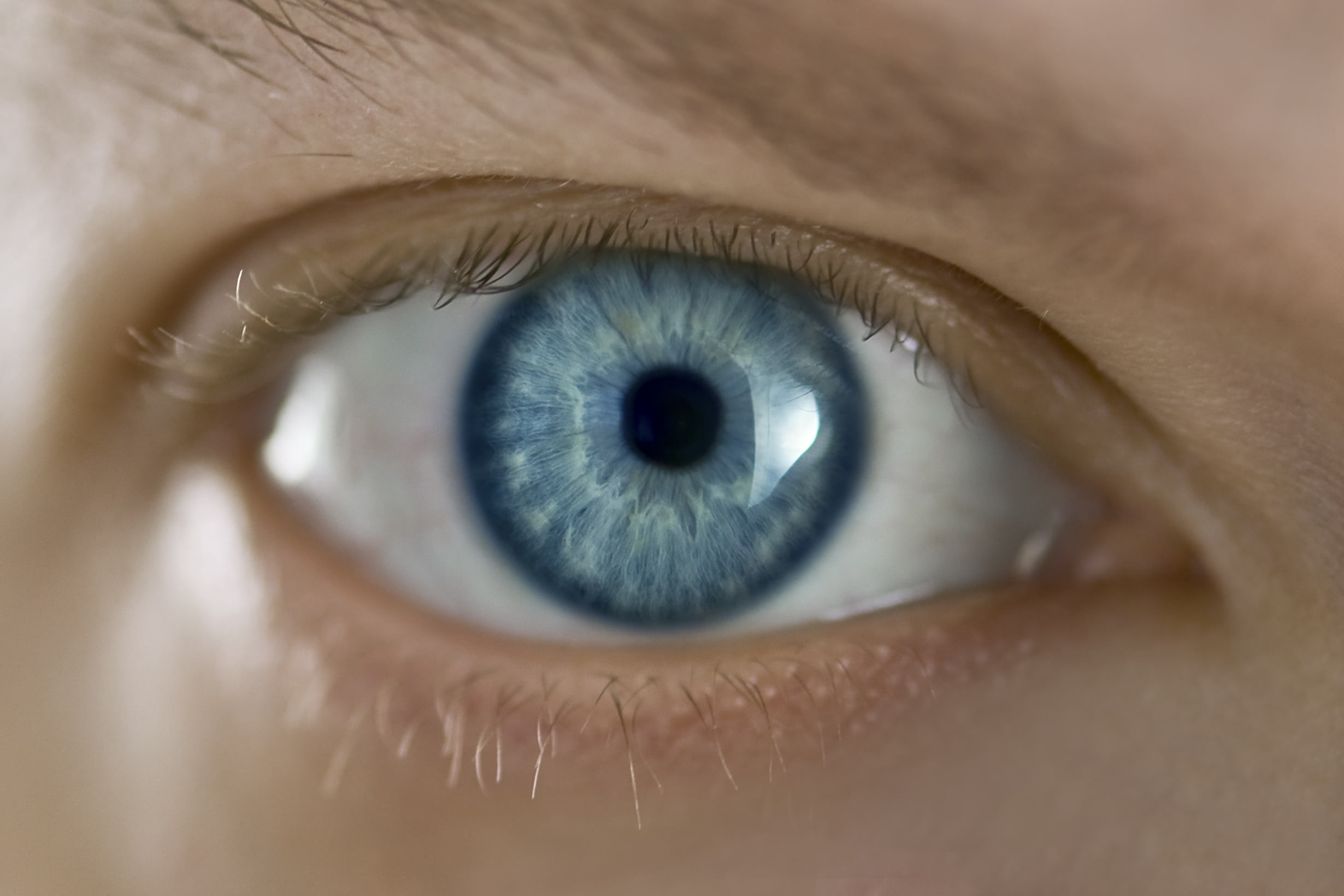 Visual of Permanent Eye-Color Change