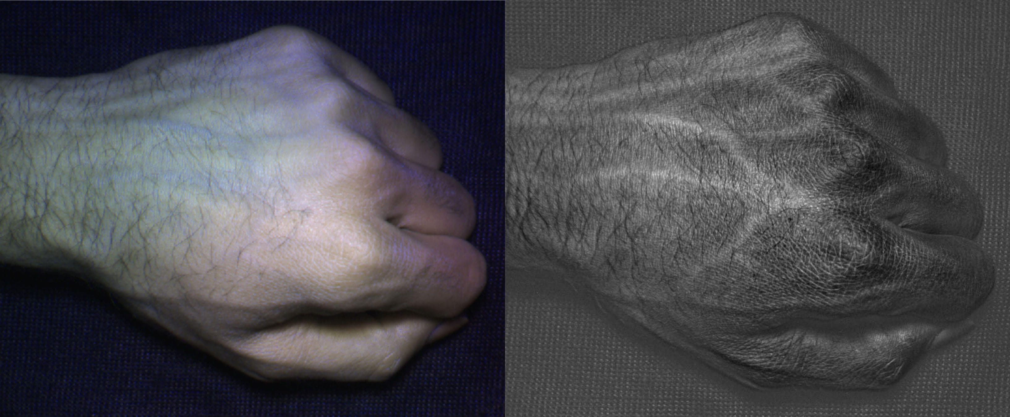 Visual of See Through the Skin with Your Smartphone