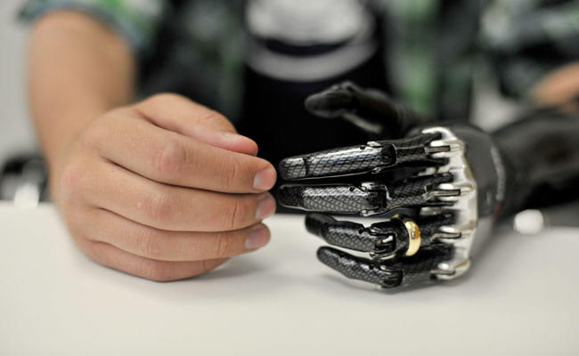 Visual of Man Controls Prosthetic Arm with His Mind