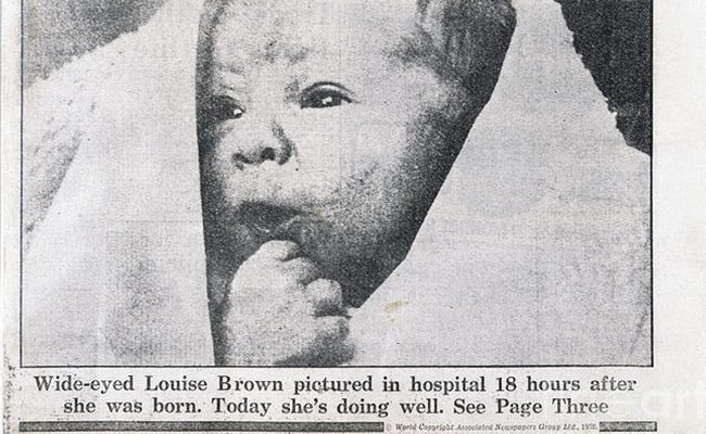 Visual of 1978 - World's First 'Test Tube Baby' Born