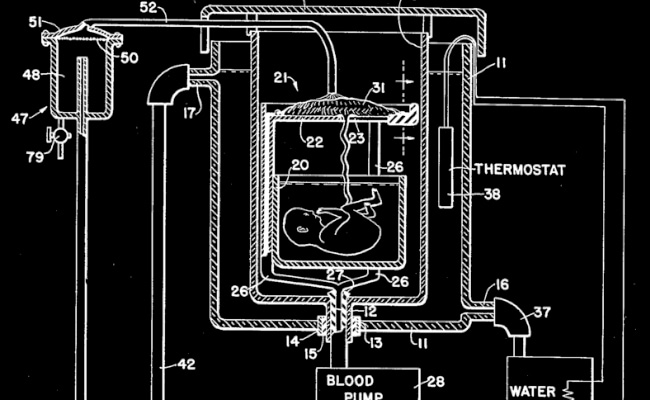 Visual of 1955 - Artificial Womb Drawing Patented