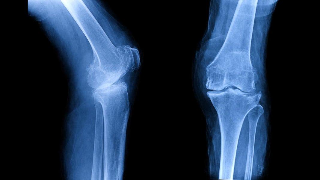 Visual of Custom-grown bones, and other wild advances in regenerative medicine