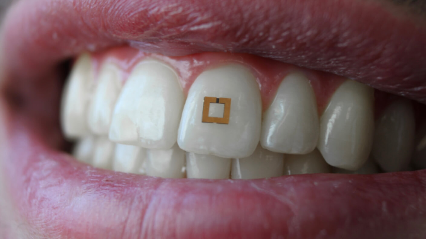 Visual of This tiny tooth sensor tracks what you eat, and it could help you be healthier
