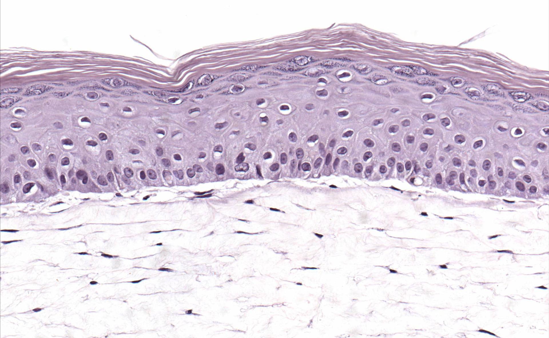 in vitro human skin